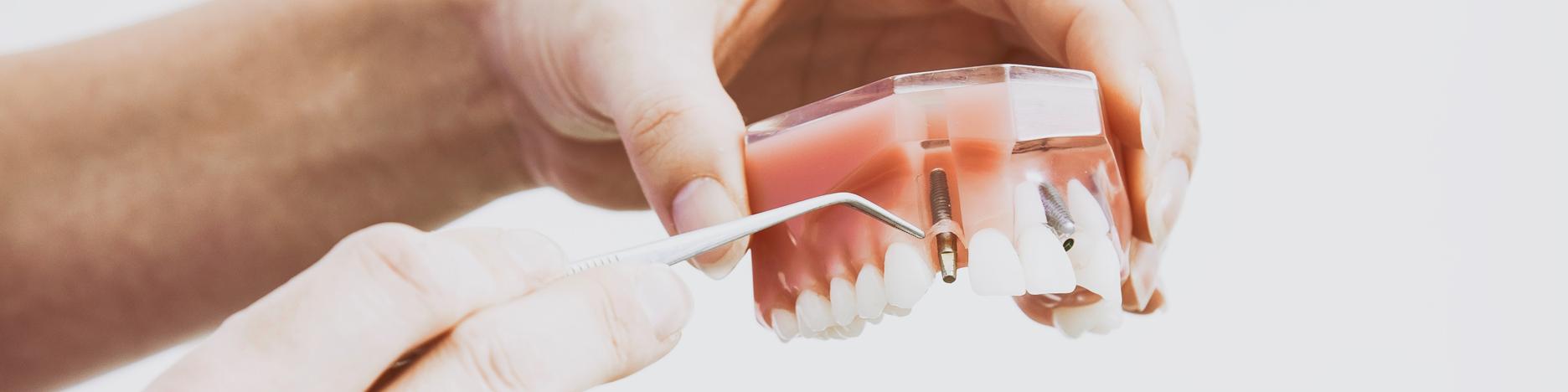 Dental Nursing Course in London